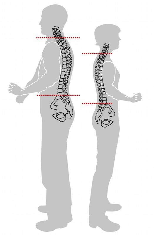 Rückenlänge siebter Wirbel Beckenknochen ausmessen